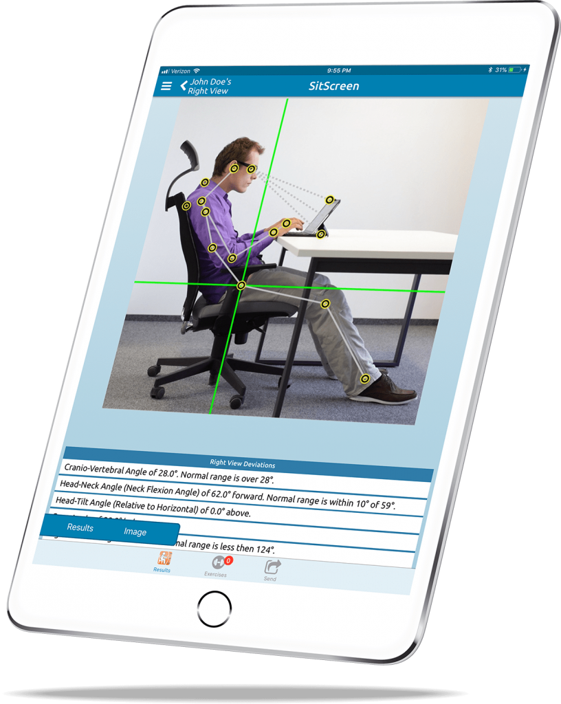 a tablet displaying a posture app that we use at the Bedford Chiropractic Clinic to look at your posture