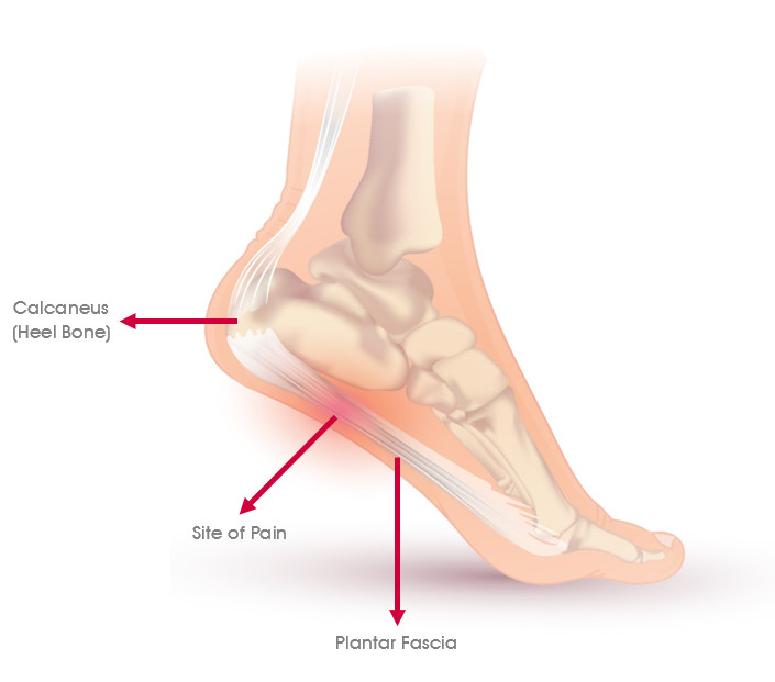 Diagram showing the plantar fascia and where the site of pain is if this is damaged