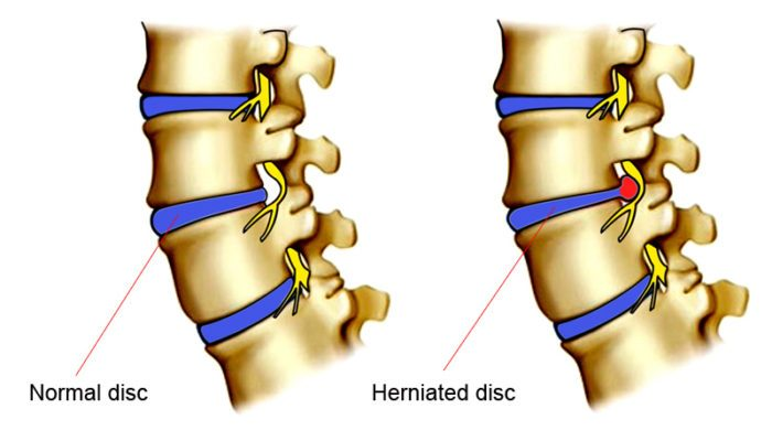A diagram of a normal spinal disc and a herniated spinal disc
