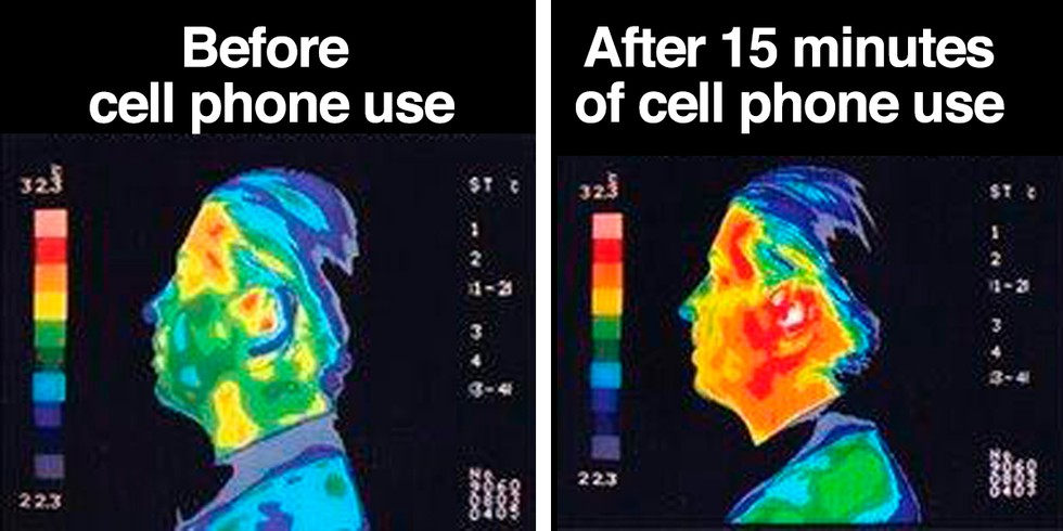 Electromagnetic Radiation before and after cell phone use