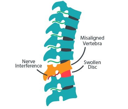 subluxated spine