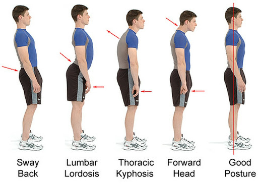 Diagram on how to have good posture whilst standing and the incorrect posture whilst standing